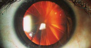 Зачем хирурги разрезали глаза по форме алмаза: гениальная операция
