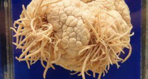 Пожиратель мозга: паразит, питающийся мозгом человека