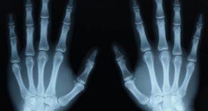 «Виагра», спички, пластмасса и еще семь случайных научных открытий